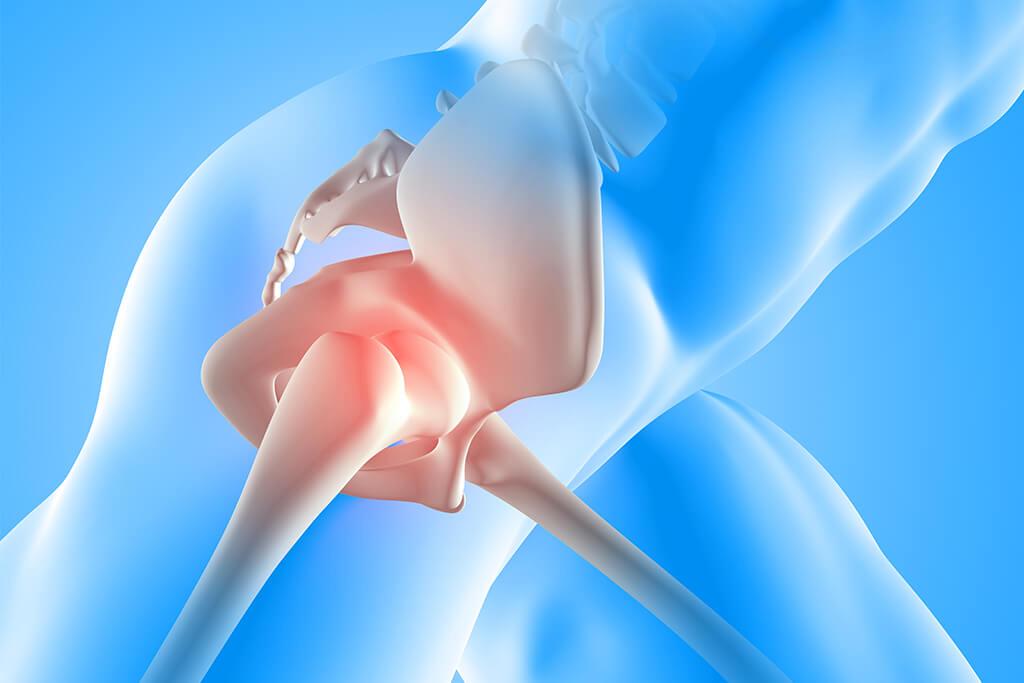 Incidencia de fractura de cadera en Costa Rica - Consulte a especialistas en Ortopedia