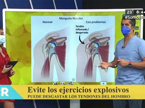 Evitá ejercicios explosivos, puede desgastar los tendones del hombro