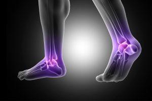 Tratamientos para las fracturas de tobillo